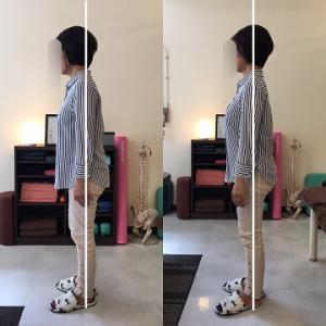 前傾姿勢の整体後の比較