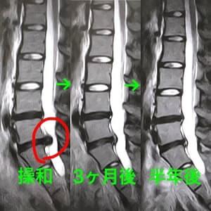 腰椎椎間板ヘルニアのレントゲン