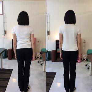 側弯症の整体後の比較